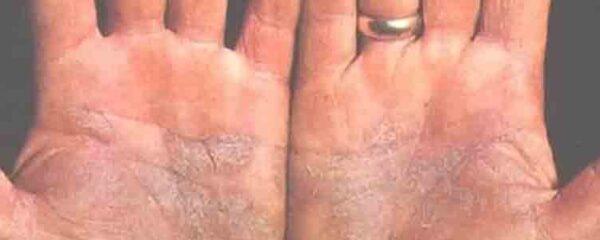 psoriasis palmo-plantaire
